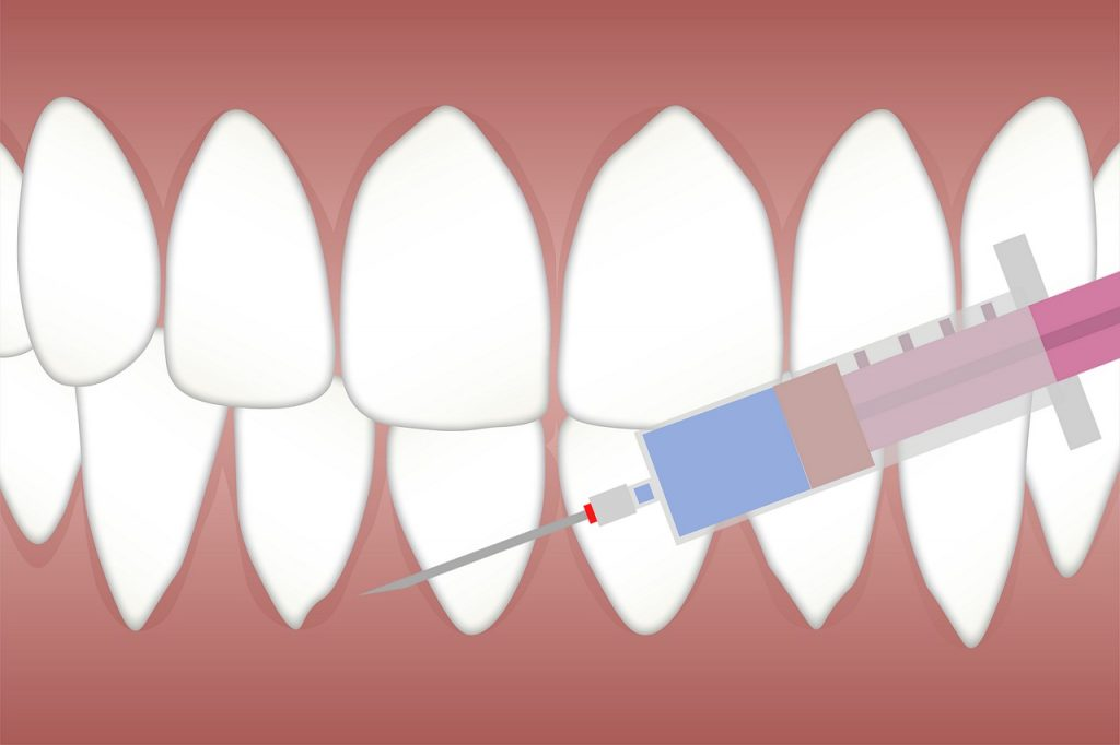 שיניים ומזרק